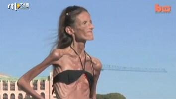 Editie NL Shocking: vrouw weegt 24 kg door anorexia