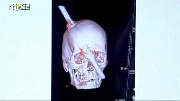 RTL Nieuws Man overleeft staaf van twee meter door zijn hoofd