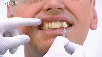 Dit Is Mijn Lijf - Tanden Bleken