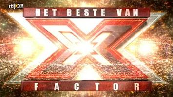Het Beste Van X Factor Worldwide - Afl. 1