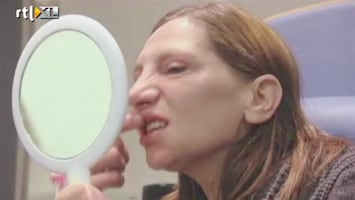Een Nieuw Begin - Nieuwe Tanden Voor Renate