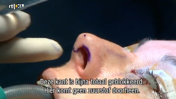 Het Verhaal Achter Plastische Chirurgie Het Verhaal Achter Plastische Chirurgie /10