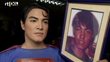 RTL Nieuws Chirurgie voor echte 'Superman-look'