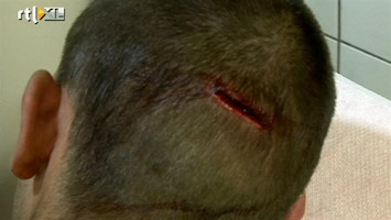 Zon, Zuipen, Ziekenhuis - Jonathan Is Op Zijn Achterhoofd Gevallen