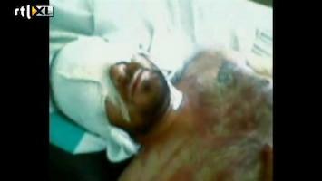 RTL Nieuws Gruwelijke martelingen Homs (schokkend)