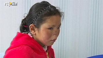 RTL Nieuws Nieuwe neus voor Chinees meisje van 10