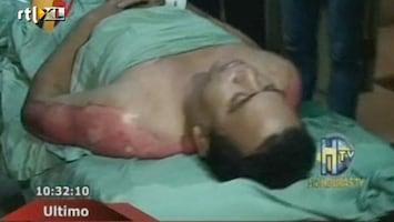 RTL Nieuws Dodental gevangenisbrand Honduras naar 377