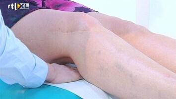 Dit Is Mijn Lijf - Knieprothese
